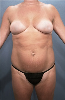 Liposuction Before Photo by Marvin Shienbaum, MD; Brandon, FL - Case 30318