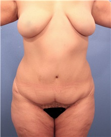Liposuction Before Photo by Marvin Shienbaum, MD; Brandon, FL - Case 30321