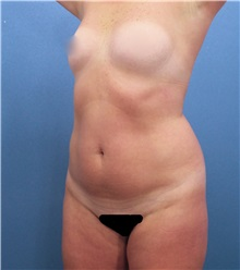 Liposuction Before Photo by Marvin Shienbaum, MD; Brandon, FL - Case 30322
