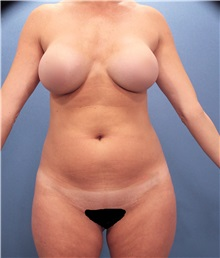 Liposuction Before Photo by Marvin Shienbaum, MD; Brandon, FL - Case 30324