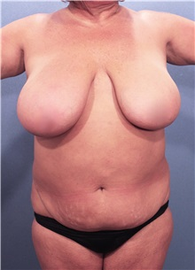 Liposuction Before Photo by Marvin Shienbaum, MD; Brandon, FL - Case 30356