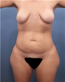 Liposuction Before Photo by Marvin Shienbaum, MD; Brandon, FL - Case 30366