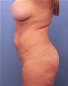 Liposuction Before Photo by Marvin Shienbaum, MD; Brandon, FL - Case 30380