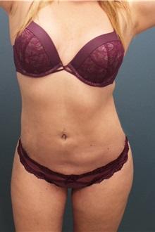 Liposuction After Photo by Marvin Shienbaum, MD; Brandon, FL - Case 30381