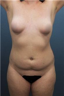Liposuction Before Photo by Marvin Shienbaum, MD; Brandon, FL - Case 30381