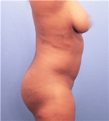 Liposuction Before Photo by Marvin Shienbaum, MD; Brandon, FL - Case 30385