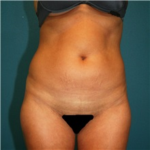 Liposuction Before Photo by Marvin Shienbaum, MD; Brandon, FL - Case 30413