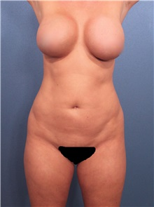 Liposuction Before Photo by Marvin Shienbaum, MD; Brandon, FL - Case 30415