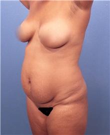 Tummy Tuck Before Photo by Marvin Shienbaum, MD; Brandon, FL - Case 30452