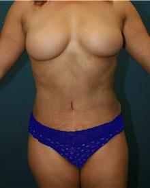 Tummy Tuck After Photo by Marvin Shienbaum, MD; Brandon, FL - Case 30454