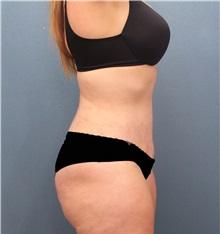 Tummy Tuck After Photo by Marvin Shienbaum, MD; Brandon, FL - Case 30535