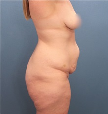 Tummy Tuck Before Photo by Marvin Shienbaum, MD; Brandon, FL - Case 30535