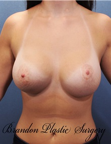 Breast Augmentation After Photo by Marvin Shienbaum, MD; Brandon, FL - Case 31188