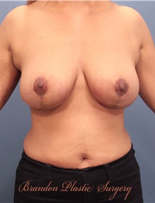 Breast Lift After Photo by Marvin Shienbaum, MD; Brandon, FL - Case 34604