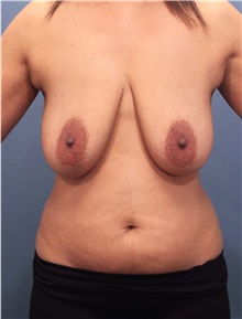 Breast Lift Before Photo by Marvin Shienbaum, MD; Brandon, FL - Case 34604