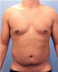Male Breast Reduction Before Photo by Marvin Shienbaum, MD; Brandon, FL - Case 34846
