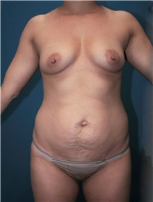 Body Contouring Before Photo by Marvin Shienbaum, MD; Brandon, FL - Case 34991