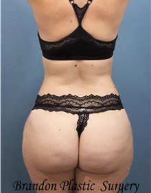 Buttock Lift with Augmentation After Photo by Marvin Shienbaum, MD; Brandon, FL - Case 35005
