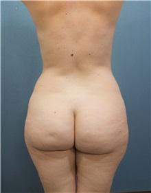 Buttock Lift with Augmentation Before Photo by Marvin Shienbaum, MD; Brandon, FL - Case 35005