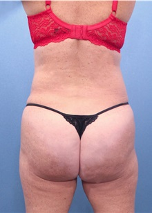 Buttock Lift with Augmentation After Photo by Marvin Shienbaum, MD; Brandon, FL - Case 37222