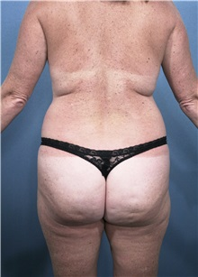 Buttock Lift with Augmentation Before Photo by Marvin Shienbaum, MD; Brandon, FL - Case 37222