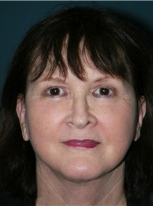 Facelift After Photo by Marvin Shienbaum, MD; Brandon, FL - Case 37319
