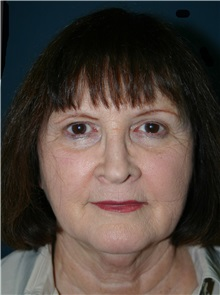 Facelift Before Photo by Marvin Shienbaum, MD; Brandon, FL - Case 37319