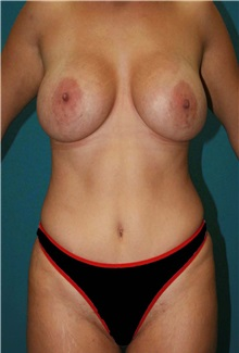 Body Contouring After Photo by Marvin Shienbaum, MD; Brandon, FL - Case 37507