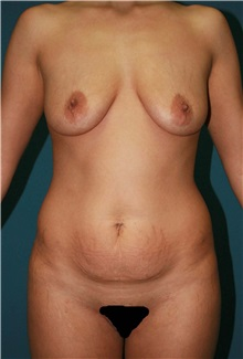 Body Contouring Before Photo by Marvin Shienbaum, MD; Brandon, FL - Case 37507