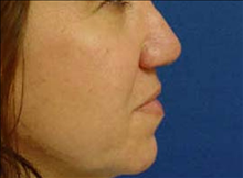 Rhinoplasty After Photo by Vincent Lepore, MD; San Jose, CA - Case 24022