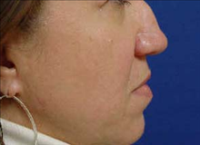 Rhinoplasty Before Photo by Vincent Lepore, MD; San Jose, CA - Case 24022