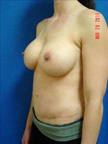 Breast Augmentation After Photo by Vincent Lepore, MD; San Jose, CA - Case 24026