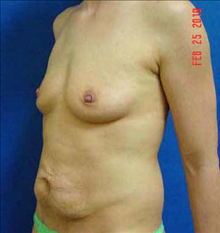 Breast Augmentation Before Photo by Vincent Lepore, MD; San Jose, CA - Case 24026