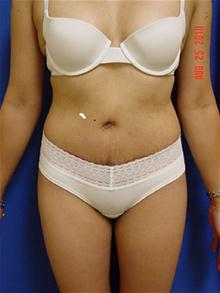 Tummy Tuck After Photo by Vincent Lepore, MD; San Jose, CA - Case 27531
