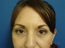 Eyelid Surgery After Photo by Vincent Lepore, MD; San Jose, CA - Case 28034