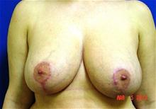 Breast Reduction After Photo by Vincent Lepore, MD; San Jose, CA - Case 28090