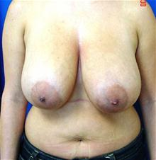 Breast Reduction Before Photo by Vincent Lepore, MD; San Jose, CA - Case 28090