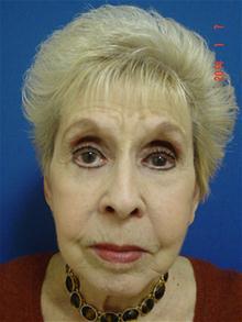 Facelift After Photo by Vincent Lepore, MD; San Jose, CA - Case 28312