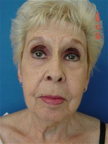 Facelift Before Photo by Vincent Lepore, MD; San Jose, CA - Case 28312
