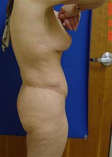 Liposuction After Photo by Vincent Lepore, MD; San Jose, CA - Case 29706
