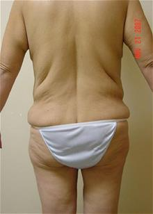 Liposuction Before Photo by Vincent Lepore, MD; San Jose, CA - Case 29706