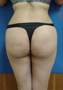 Buttock Lift with Augmentation After Photo by Vincent Lepore, MD; San Jose, CA - Case 31934
