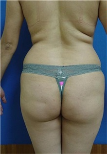 Buttock Lift with Augmentation Before Photo by Vincent Lepore, MD; San Jose, CA - Case 31934