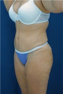 Tummy Tuck After Photo by Ricardo Rodriguez, MD; Lutherville-Timonium, MD - Case 26844