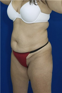 Tummy Tuck Before Photo by Ricardo Rodriguez, MD; Lutherville-Timonium, MD - Case 26844