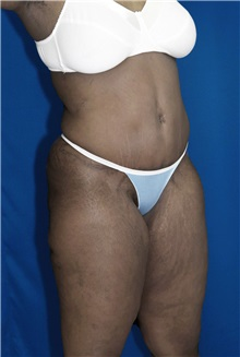 Tummy Tuck After Photo by Ricardo Rodriguez, MD; Lutherville-Timonium, MD - Case 26845
