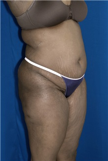 Tummy Tuck Before Photo by Ricardo Rodriguez, MD; Lutherville-Timonium, MD - Case 26845