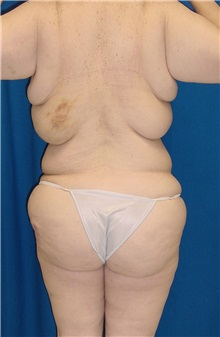Body Contouring Before Photo by Ricardo Rodriguez, MD; Lutherville-Timonium, MD - Case 26880