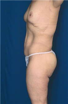 Body Contouring After Photo by Ricardo Rodriguez, MD; Lutherville-Timonium, MD - Case 26880