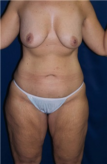 Body Contouring Before Photo by Ricardo Rodriguez, MD; Lutherville-Timonium, MD - Case 26881